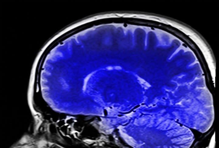 cervello cranio